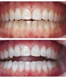 Как выглядит фотоотбеливание зубов?