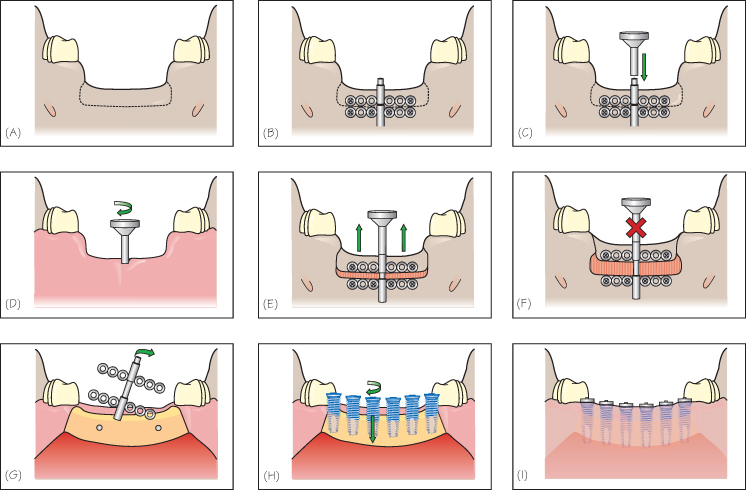 Пластика костной ткани - фото