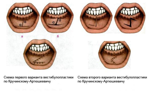 Вестибулопластика верхней губы