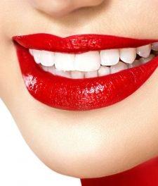 Болят зубы после отбеливания: что делать?