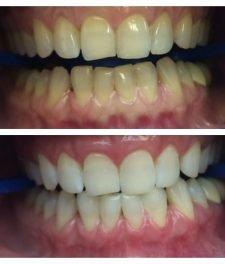 Холодное отбеливание зубов: фото до и после