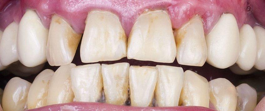 Как выглядит эрозия зубной эмали?