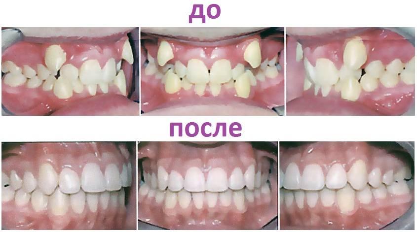 Как выглядит скученность зубов?