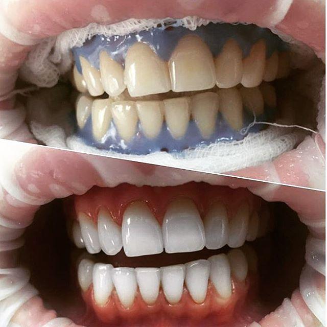 Отбеливание зубов Amazing White: фото до и после