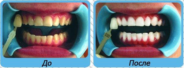 Отбеливание зубов холодным светом