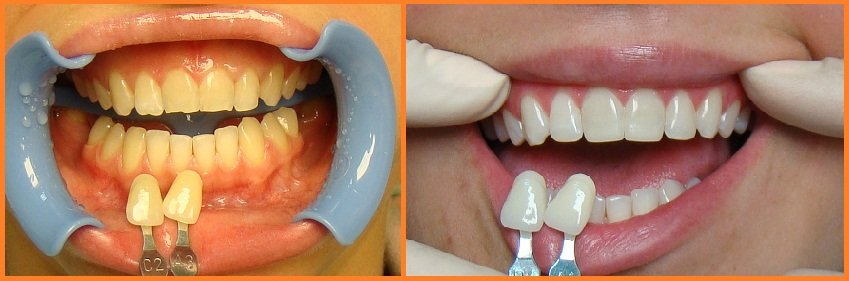 Что такое композитное отбеливание зубов