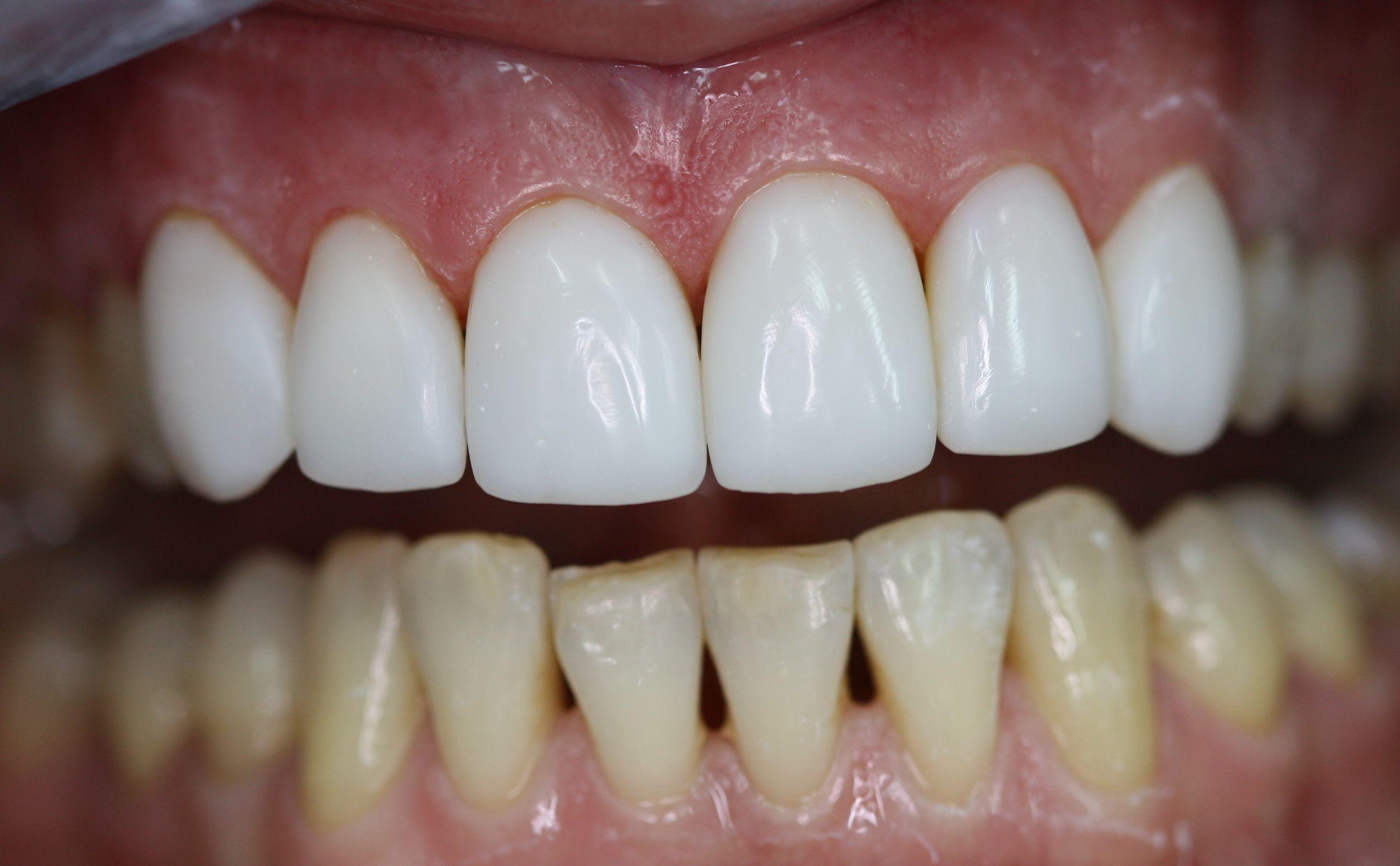 Реставрация зубов - разница