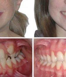 Скученность зубов: фото до и после лечения