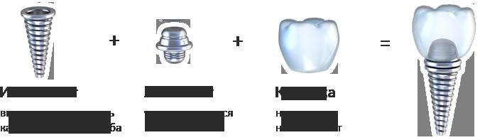 Абатмент при имплантации зубов