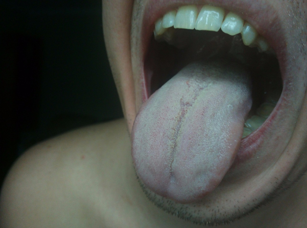 Фото белого налета на языке