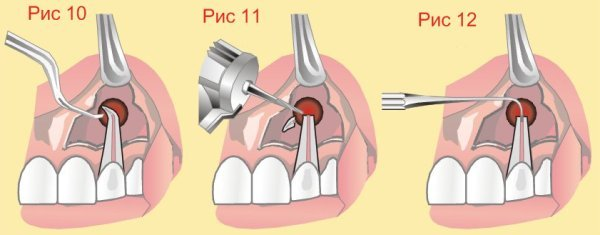 Лечение перфорации зуба