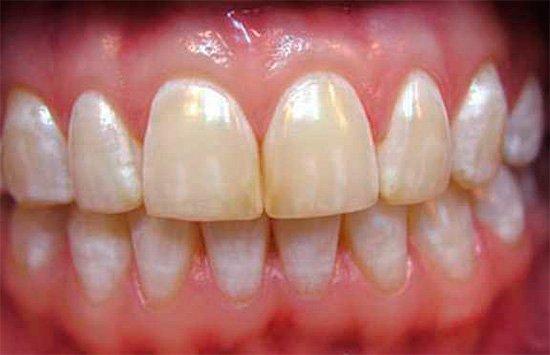 Оскомины на зубах