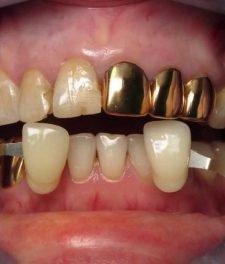 Как выглядят золотые коронки?