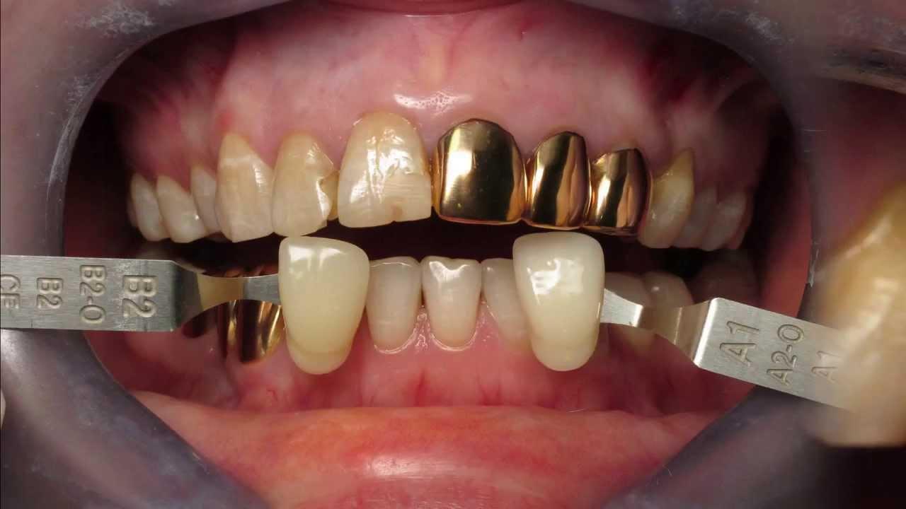 Как сделать зубную коронку 238