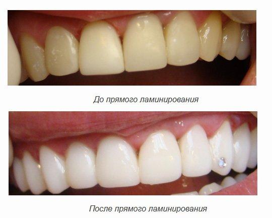 Ламинирование зубов - фото до и после