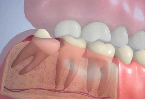 Что делать если зуб мудрости растёт в щёку: удалять или лечить, полезные рекомендации стоматологов