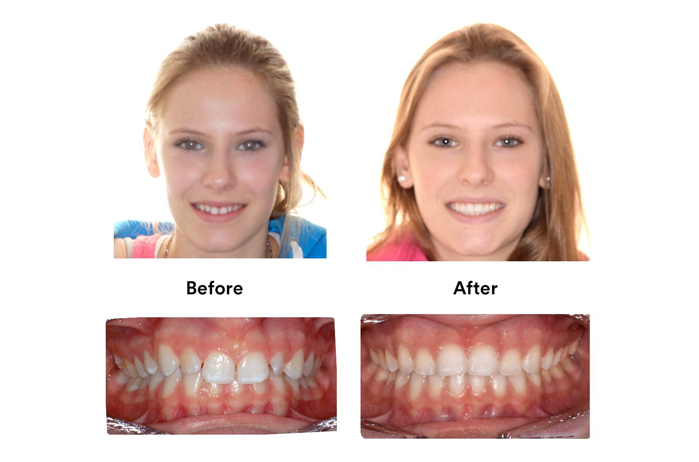 Брекеты Clarity - фото до и после