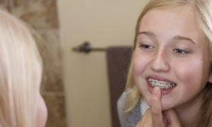 Какие брекеты лучше ставить подростку?