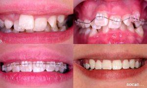 Керамические брекеты: фото до и после
