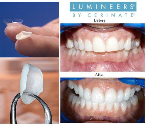 Люминиры - фото до и после