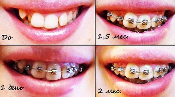 Металлический брекеты: фото до и после лечения