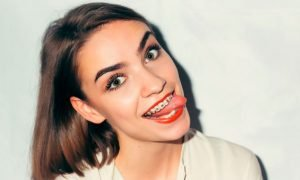 Больно ли ставить брекеты на зубы?