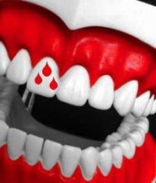 Кровоточат десна - причины и лечение