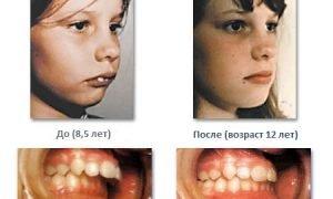 Лечение прикуса у детей