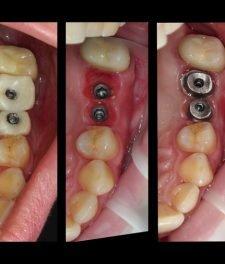 Импланты на жевательные зубы