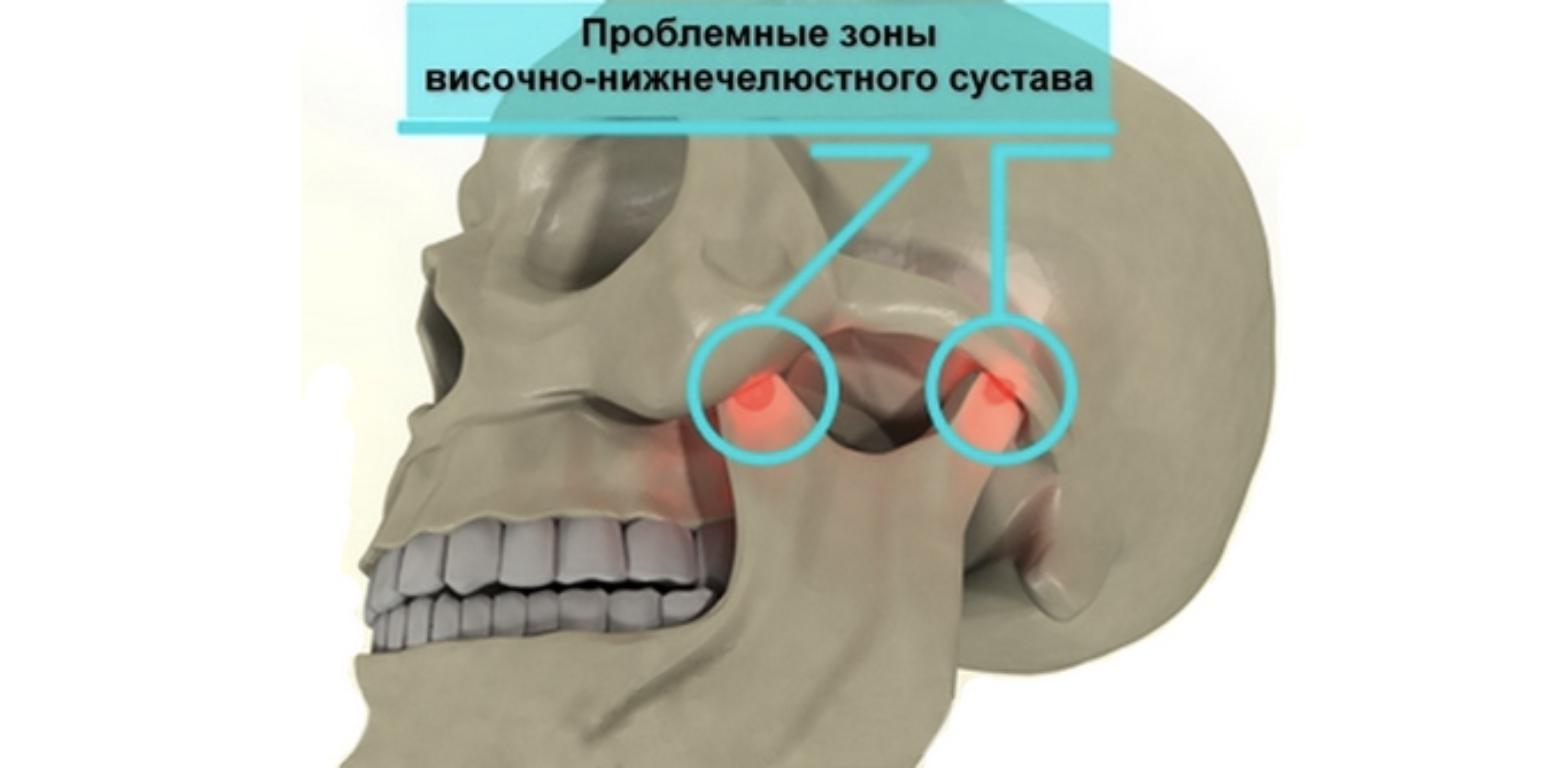 Почему возникает артрит челюстно-лицевого сустава и как его лечить