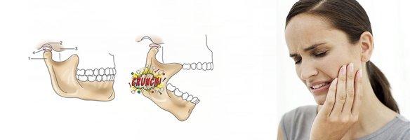 артроз склерозирующий внчс