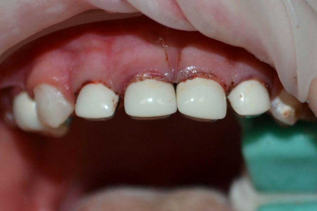 Детские коронки отлично крепятся на тех зубах, где даже самые лучшие пломбы не простоят и года в силу того, что им не за что держаться, а ещё защищают зуб от сколов и дальнейшего разрушения.