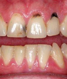 Почему гниют зубы и что делать?