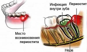 Схема воспаления надкостницы в стоматологии