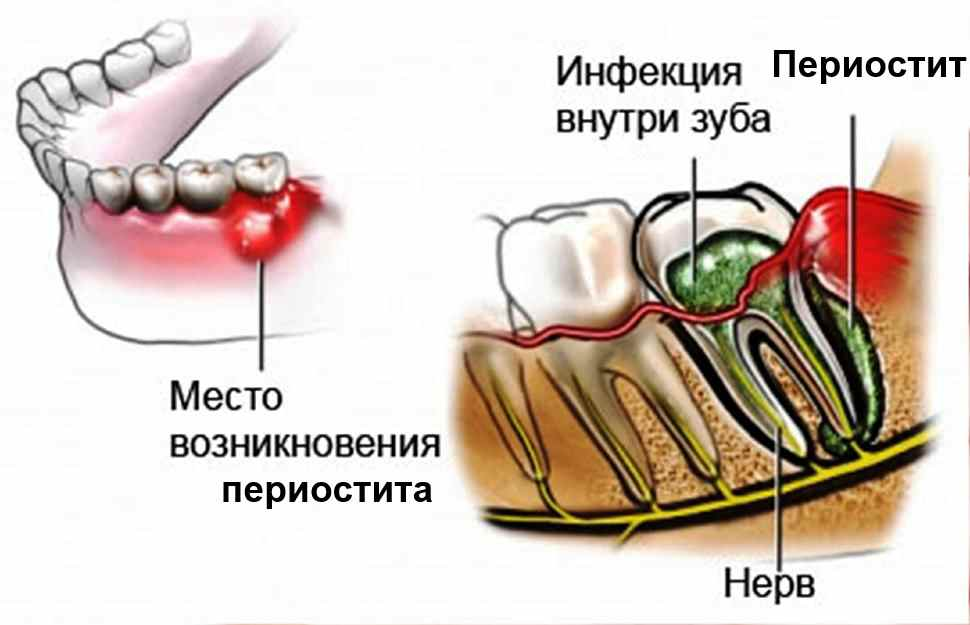 Повреждение надкостницы при удалении зуба