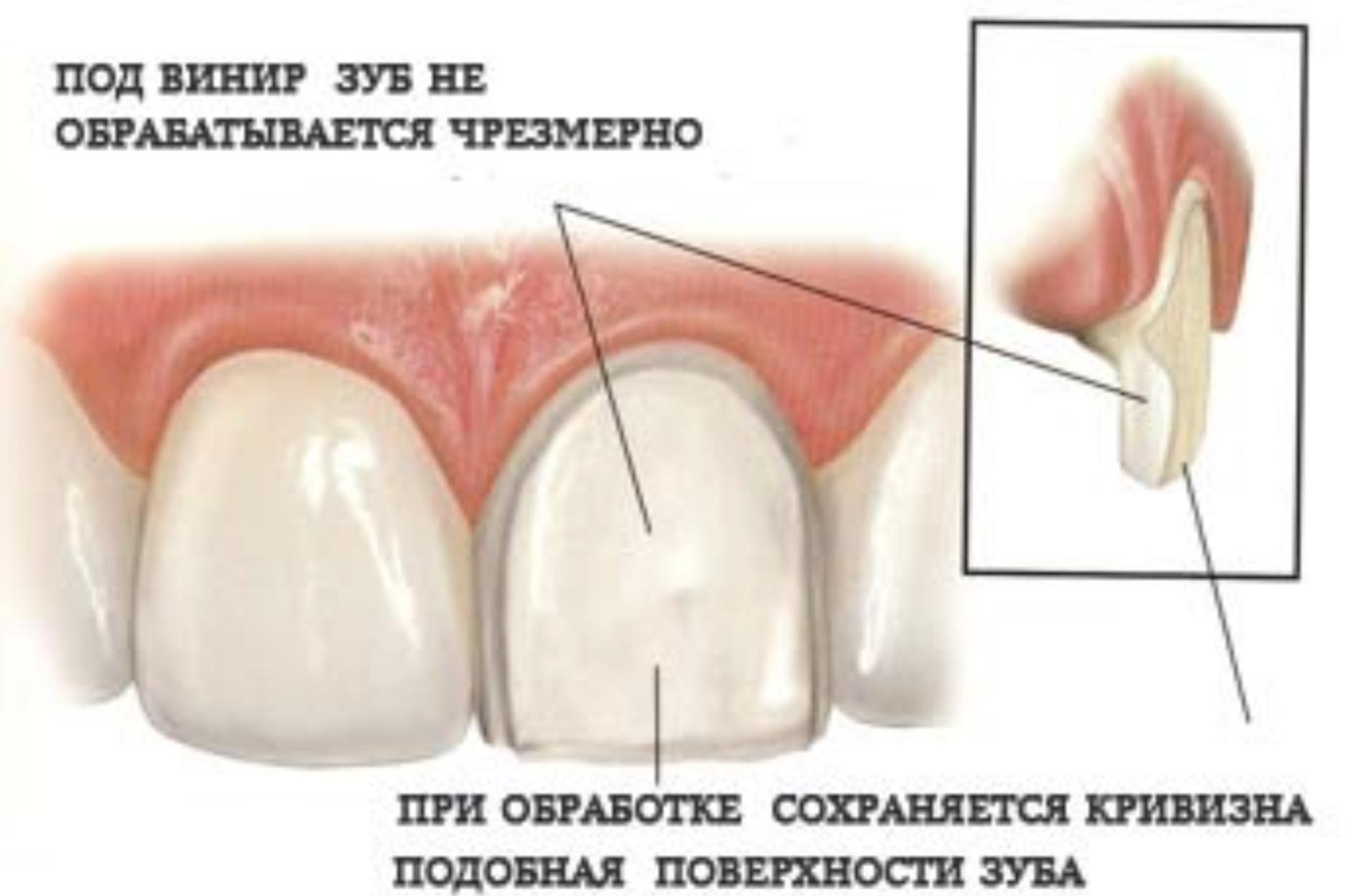 Минимальная обточка зубов под виниры