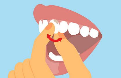 Как лечить подвижность зубов?