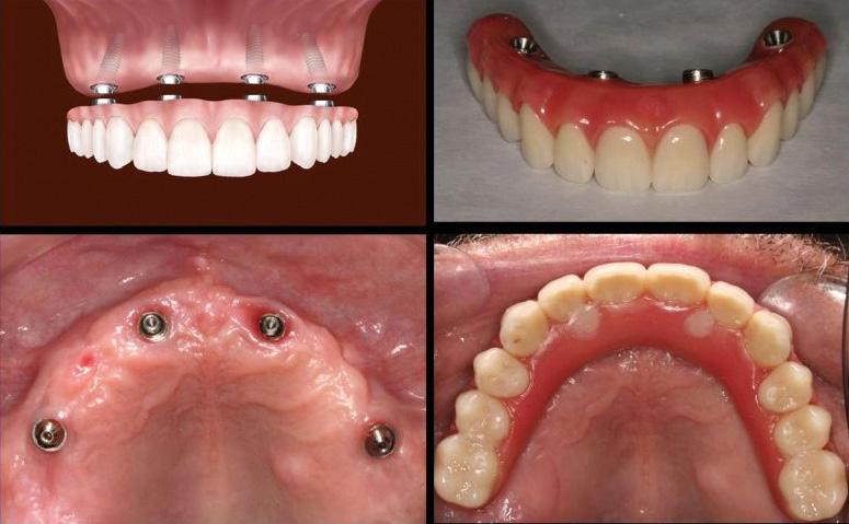 Протезирование зубов по технологии All on 4