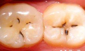 Черные зубные точки - фото
