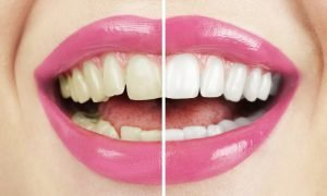 Желтые зубы - что делать?