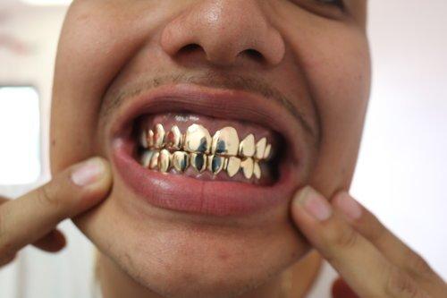 Гриллзы на зубы