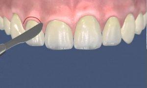 Пластика десны после имплантации