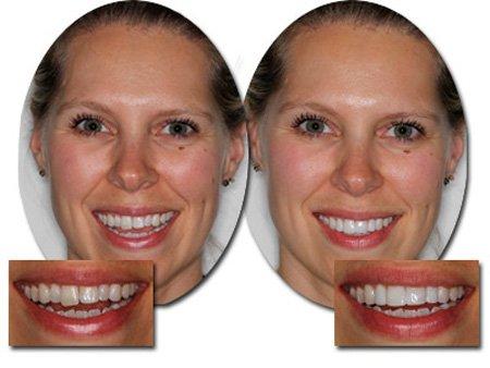 Подпиливание зубов