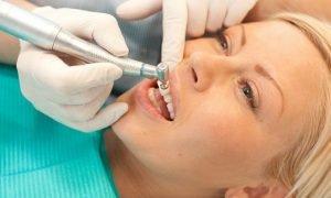Полировка зубов - что это такое?