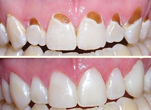 Фото кариеса корня зуба до и после лечения
