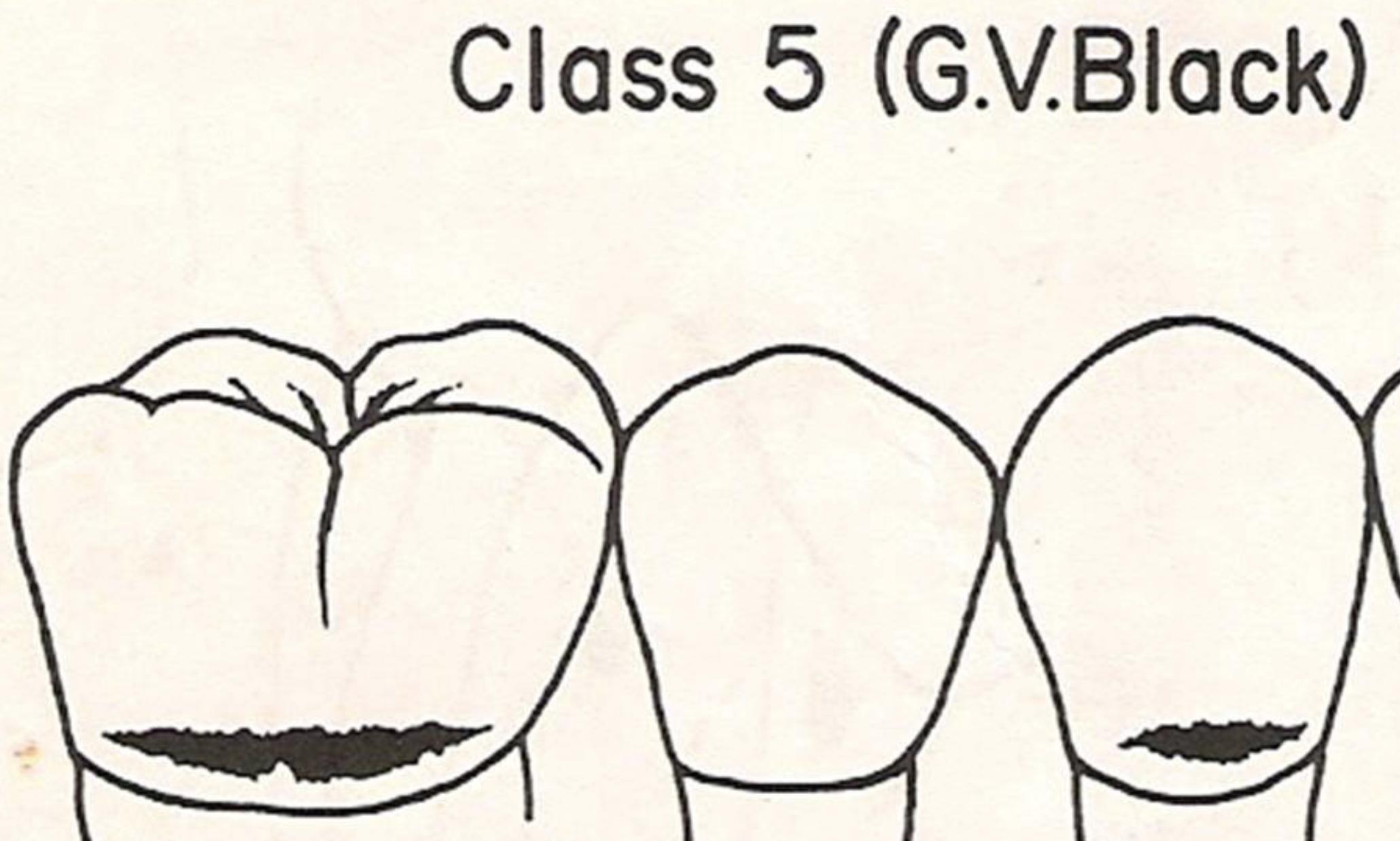 Пятый класс