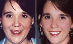 Десневая улыбка - фото до и после