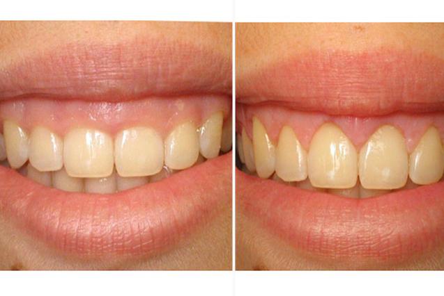 Гингивэктомия - фото до и после