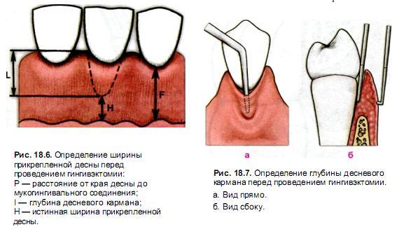 Процедура гингивэктомии