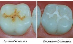 Световая пломба - фото до и после